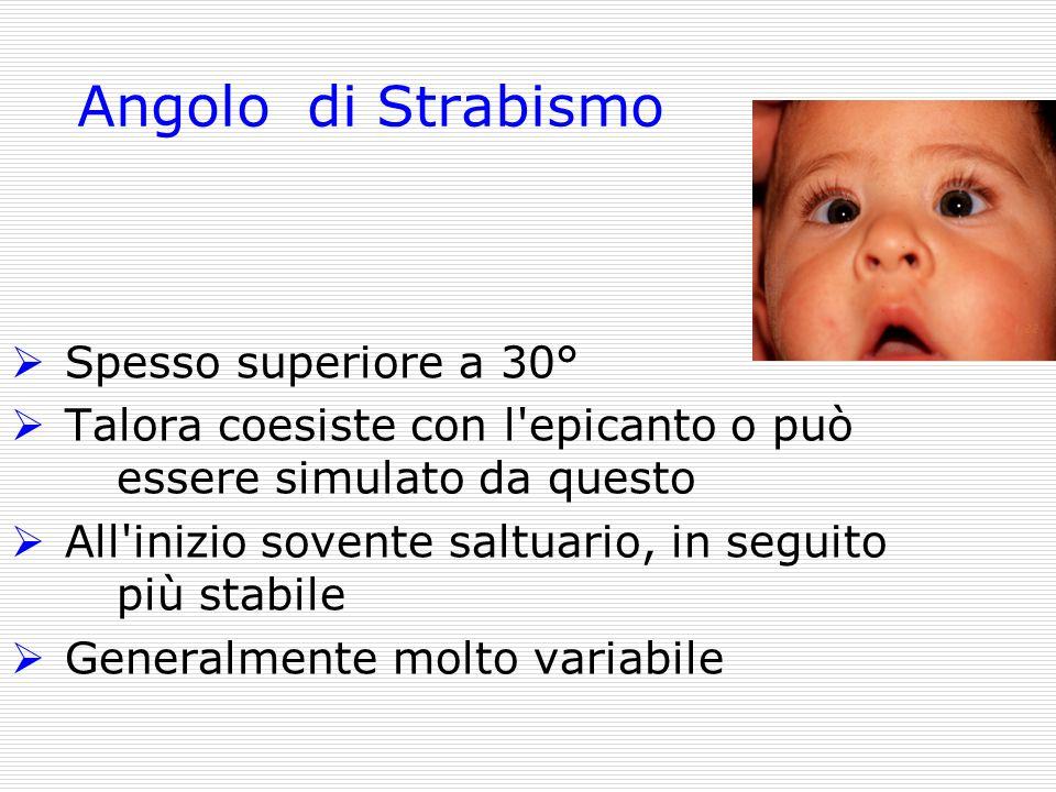 Angolo di Strabismo Spesso superiore a 30° Talora coesiste con l'epicanto o può essere simulato da questo All'inizio sovente saltuario, in seguito più