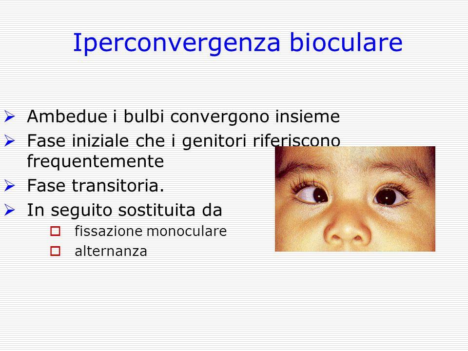 Iperconvergenza bioculare Ambedue i bulbi convergono insieme Fase iniziale che i genitori riferiscono frequentemente Fase transitoria. In seguito sost