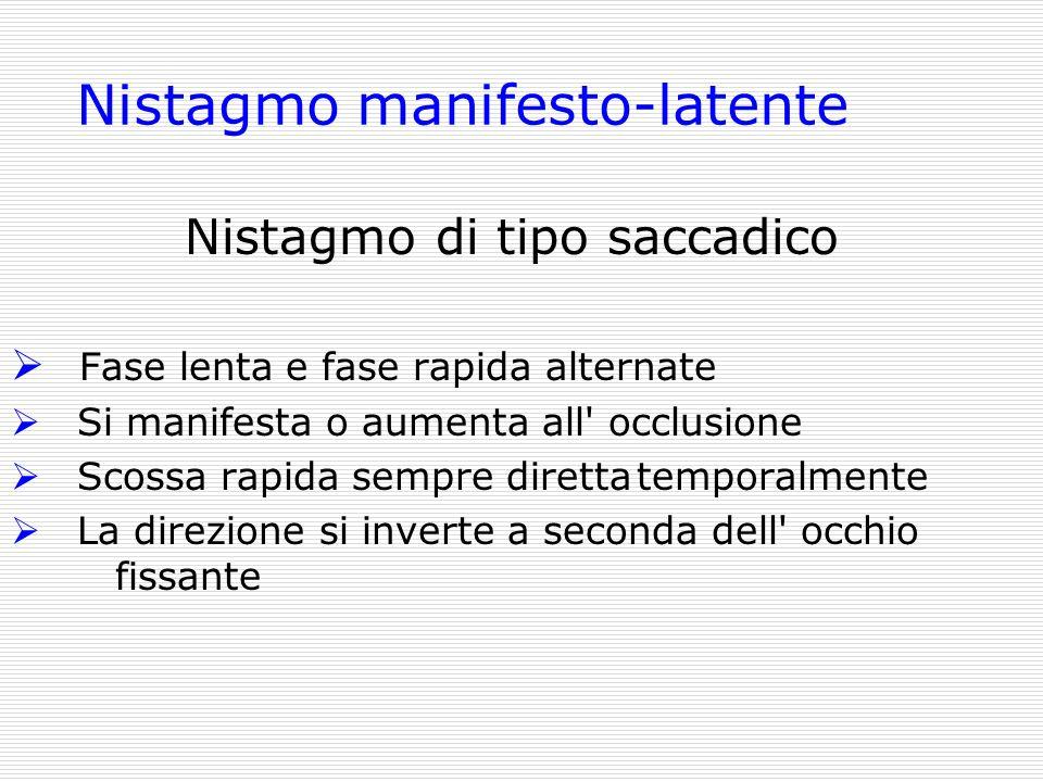 Nistagmo manifesto-latente Nistagmo di tipo saccadico Fase lenta e fase rapida alternate Si manifesta o aumenta all' occlusione Scossa rapida sempre d