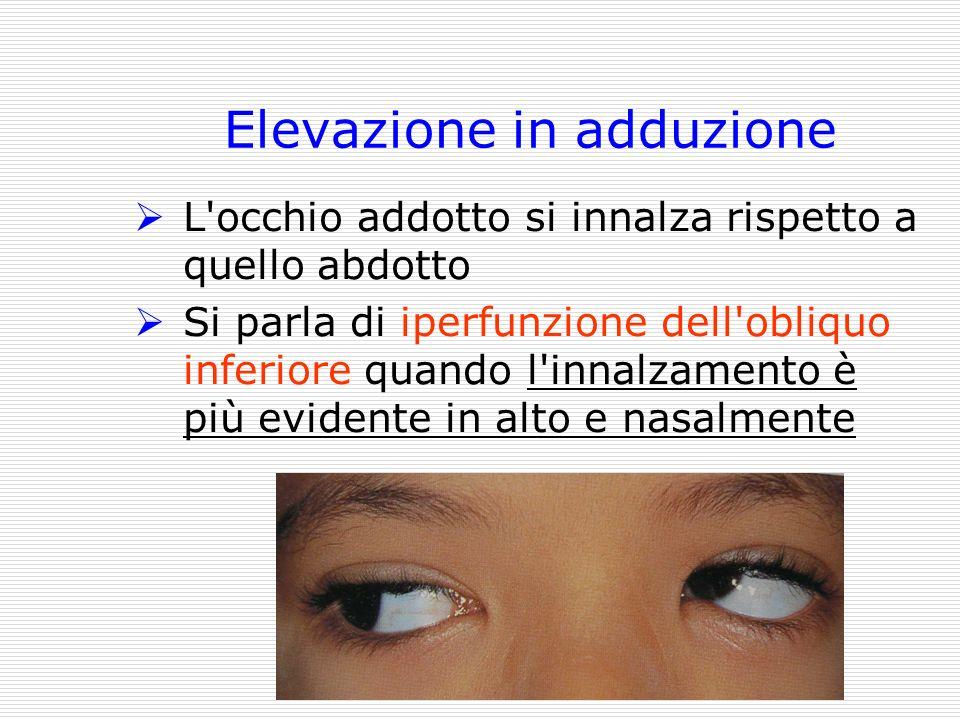 Elevazione in adduzione L'occhio addotto si innalza rispetto a quello abdotto Si parla di iperfunzione dell'obliquo inferiore quando l'innalzamento è