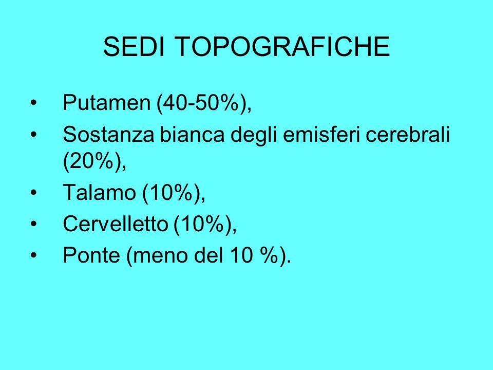 SEDI TOPOGRAFICHE Putamen (40-50%), Sostanza bianca degli emisferi cerebrali (20%), Talamo (10%), Cervelletto (10%), Ponte (meno del 10 %).