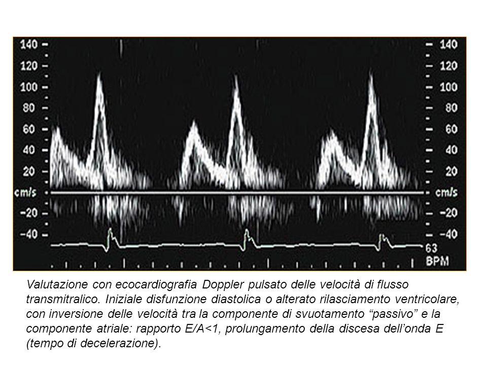 Valutazione con ecocardiografia Doppler pulsato delle velocità di flusso transmitralico. Iniziale disfunzione diastolica o alterato rilasciamento vent