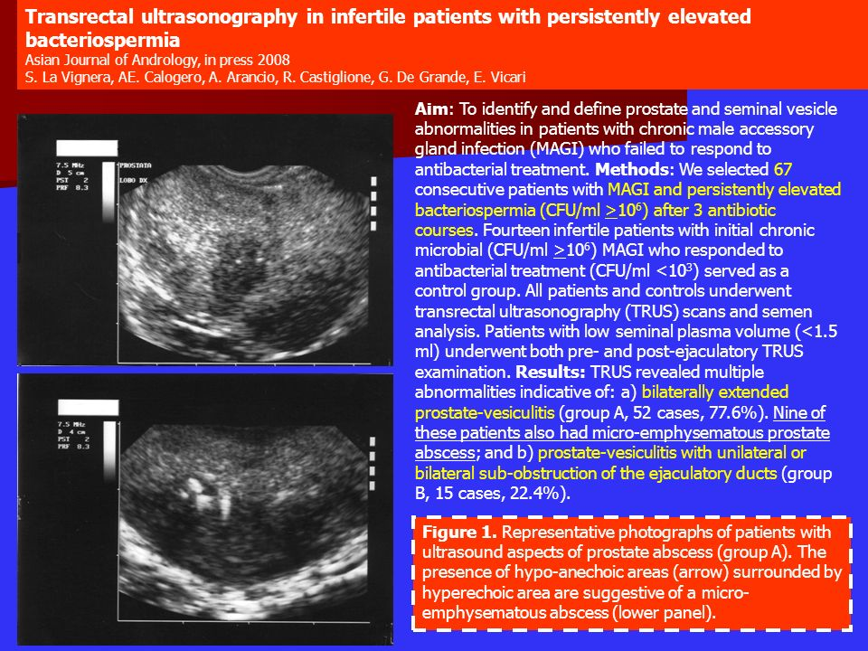 Figure 1. Representative photographs of patients with ultrasound aspects of prostate abscess (group A). The presence of hypo-anechoic areas (arrow) su