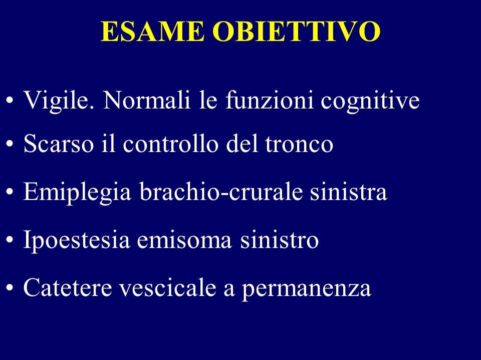 ESAME OBIETTIVO Vigile. Normali le funzioni cognitive Scarso il controllo del tronco Emiplegia brachio-crurale sinistra Ipoestesia emisoma sinistro Ca