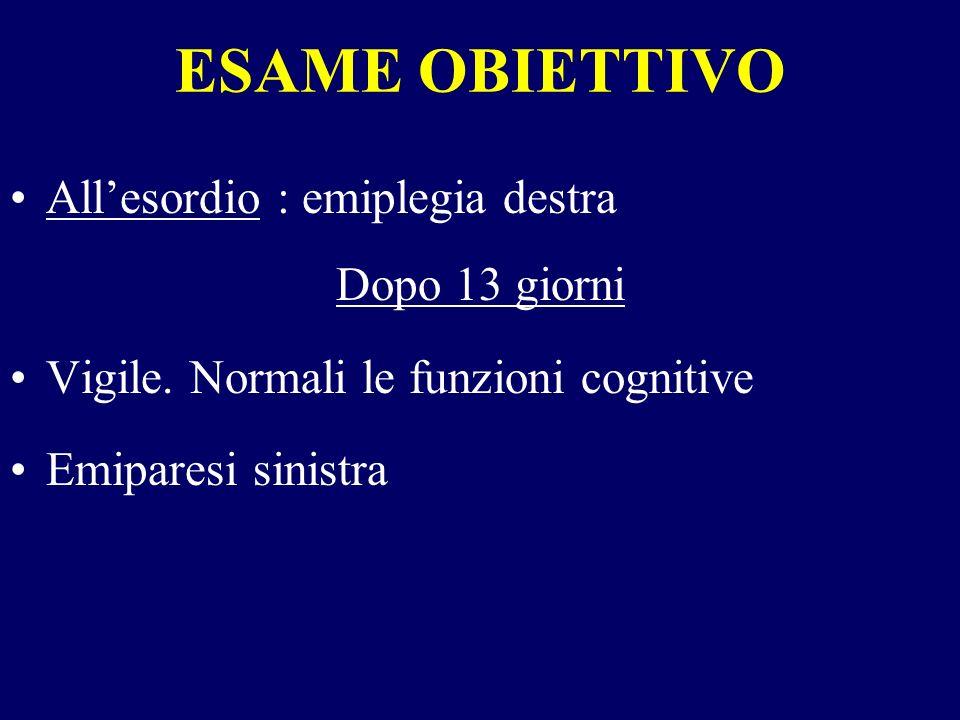 ESAME OBIETTIVO Allesordio : emiplegia destra Dopo 13 giorni Vigile. Normali le funzioni cognitive Emiparesi sinistra