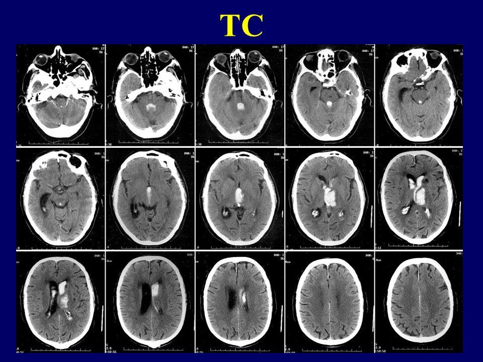 D. LUIGI aa 64 Emiplegia brachio-crurale sinistra