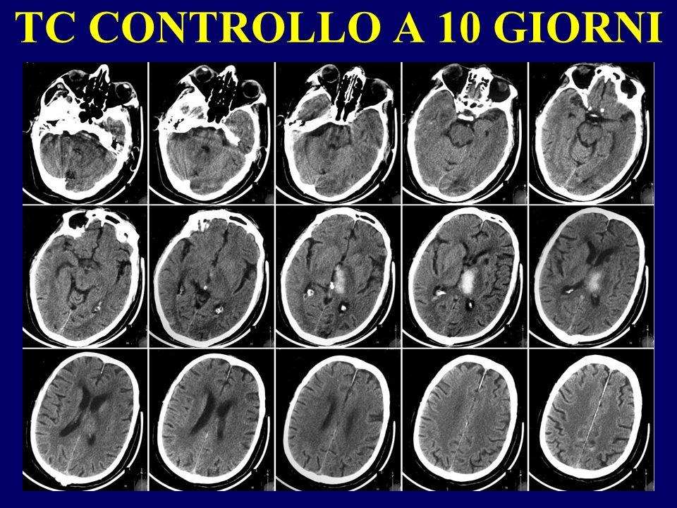 MALATTIE CHE HANNO CONDIZIONATO LEVENTO EMORRAGICO Ipertensione arteriosa Ernia discale operata circa 1 anno prima Diabete mellito I.R.C.