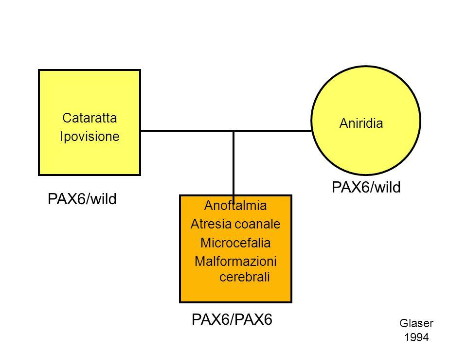 Glaser 1994 Anoftalmia Atresia coanale Microcefalia Malformazioni cerebrali Cataratta Ipovisione Aniridia PAX6/wild PAX6/PAX6