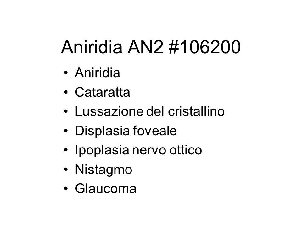 Aniridia AN2 #106200 Aniridia Cataratta Lussazione del cristallino Displasia foveale Ipoplasia nervo ottico Nistagmo Glaucoma
