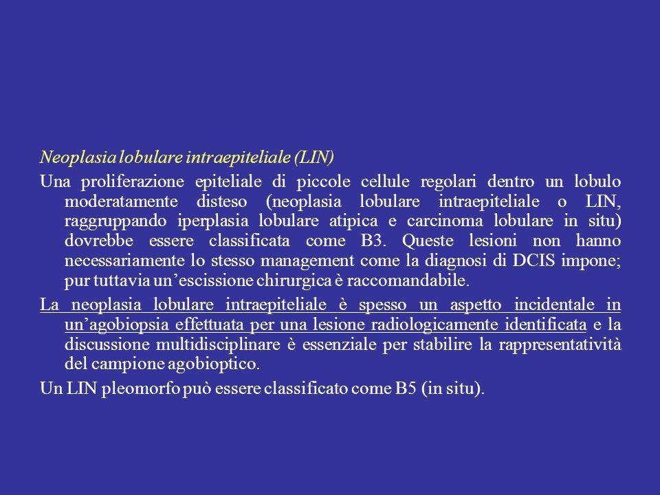 Neoplasia lobulare intraepiteliale (LIN) Una proliferazione epiteliale di piccole cellule regolari dentro un lobulo moderatamente disteso (neoplasia l