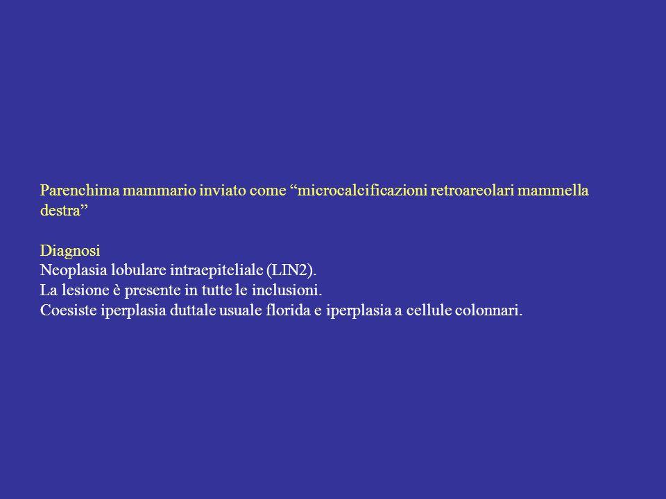 Parenchima mammario inviato come microcalcificazioni retroareolari mammella destra Diagnosi Neoplasia lobulare intraepiteliale (LIN2). La lesione è pr