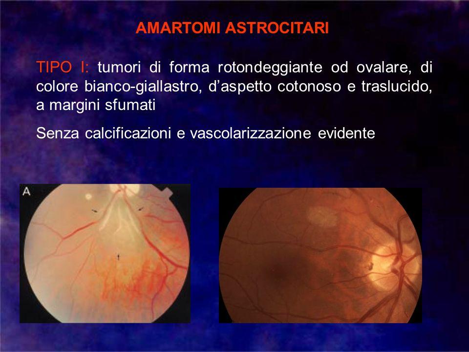 AMARTOMI ASTROCITARI TIPO I: tumori di forma rotondeggiante od ovalare, di colore bianco-giallastro, daspetto cotonoso e traslucido, a margini sfumati