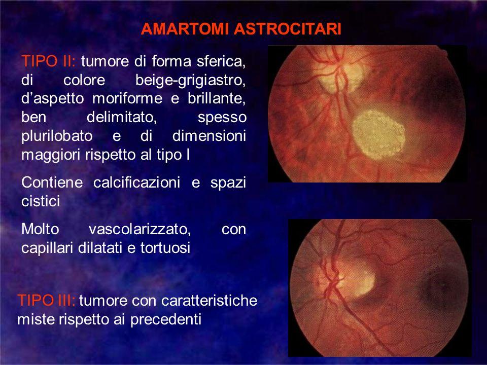 AMARTOMI ASTROCITARI TIPO II: tumore di forma sferica, di colore beige-grigiastro, daspetto moriforme e brillante, ben delimitato, spesso plurilobato