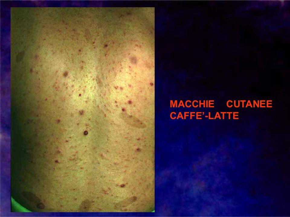 MACCHIE CUTANEE CAFFE-LATTE
