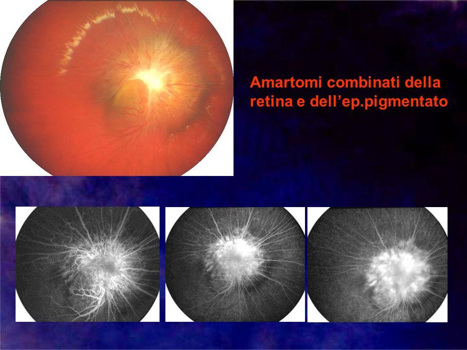 Amartomi combinati della retina e dellep.pigmentato