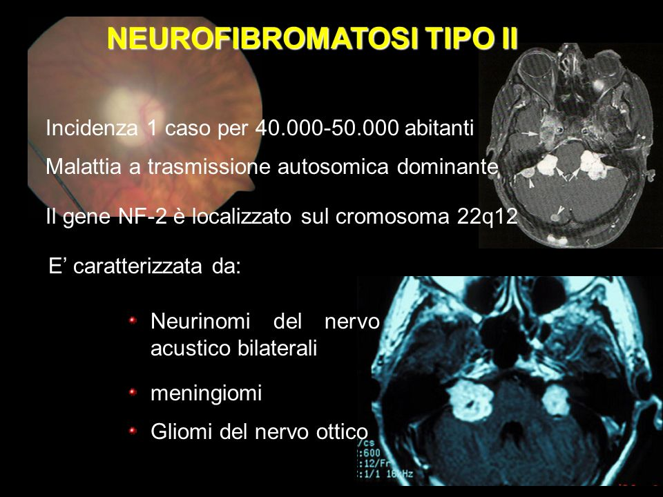 Neurinomi del nervo acustico bilaterali E la variante centrale E caratterizzata da: meningiomi Gliomi del nervo ottico Incidenza 1 caso per 40.000-50.