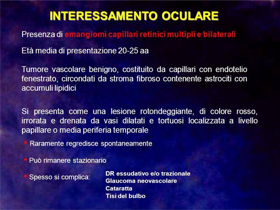INTERESSAMENTO OCULARE Presenza di emangiomi capillari retinici multipli e bilaterali Età media di presentazione 20-25 aa Tumore vascolare benigno, co