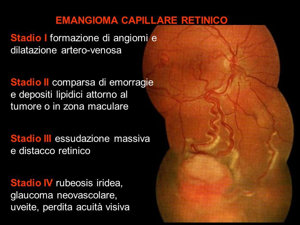Stadio I formazione di angiomi e dilatazione artero-venosa Stadio II comparsa di emorragie e depositi lipidici attorno al tumore o in zona maculare St