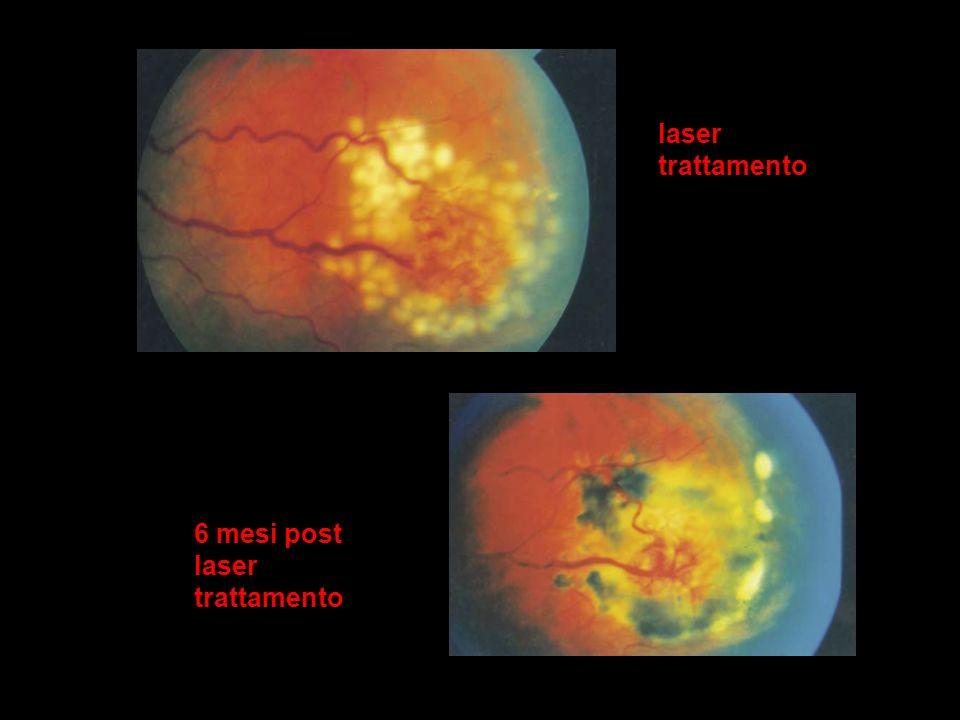 6 mesi post laser trattamento laser trattamento