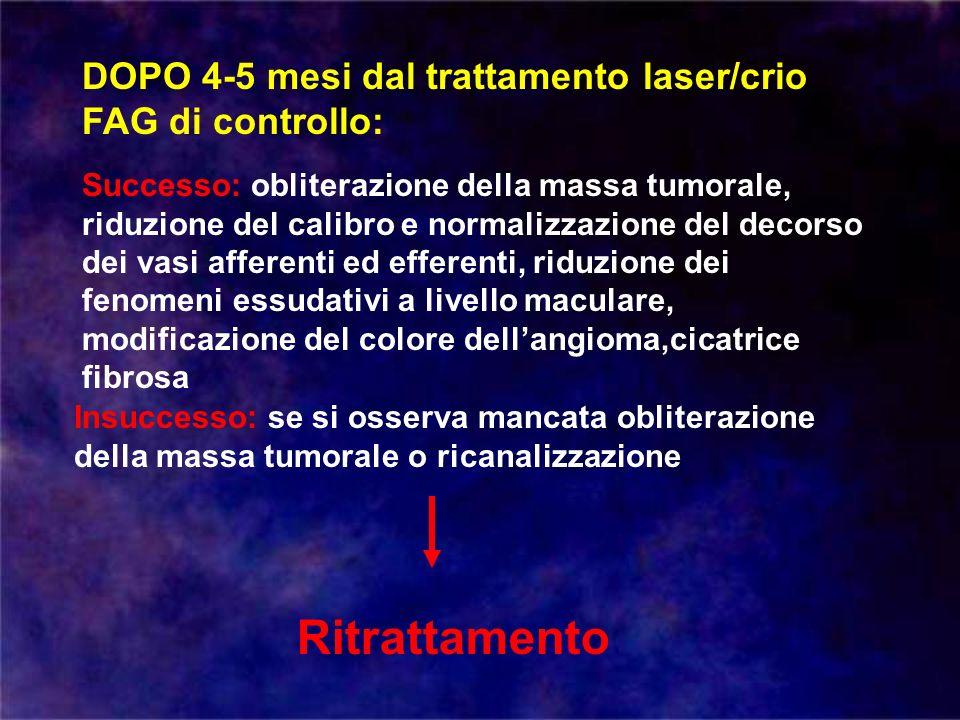 DOPO 4-5 mesi dal trattamento laser/crio FAG di controllo: Successo: obliterazione della massa tumorale, riduzione del calibro e normalizzazione del d