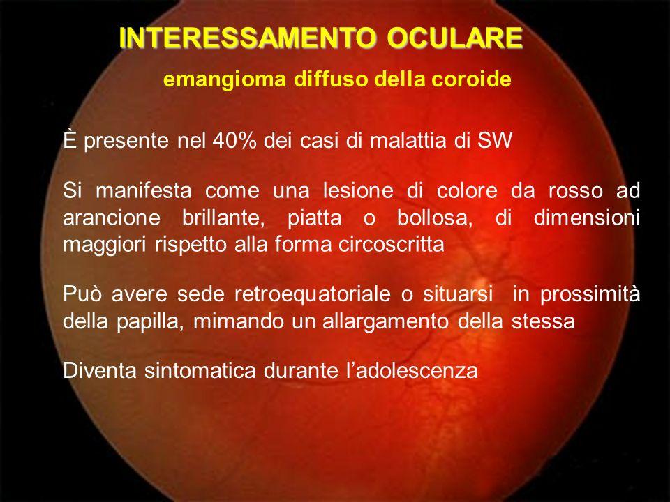 INTERESSAMENTO OCULARE È presente nel 40% dei casi di malattia di SW Si manifesta come una lesione di colore da rosso ad arancione brillante, piatta o