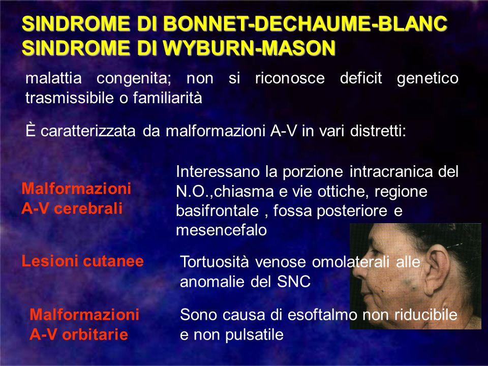 SINDROME DI BONNET-DECHAUME-BLANC SINDROME DI WYBURN-MASON malattia congenita; non si riconosce deficit genetico trasmissibile o familiarità È caratte