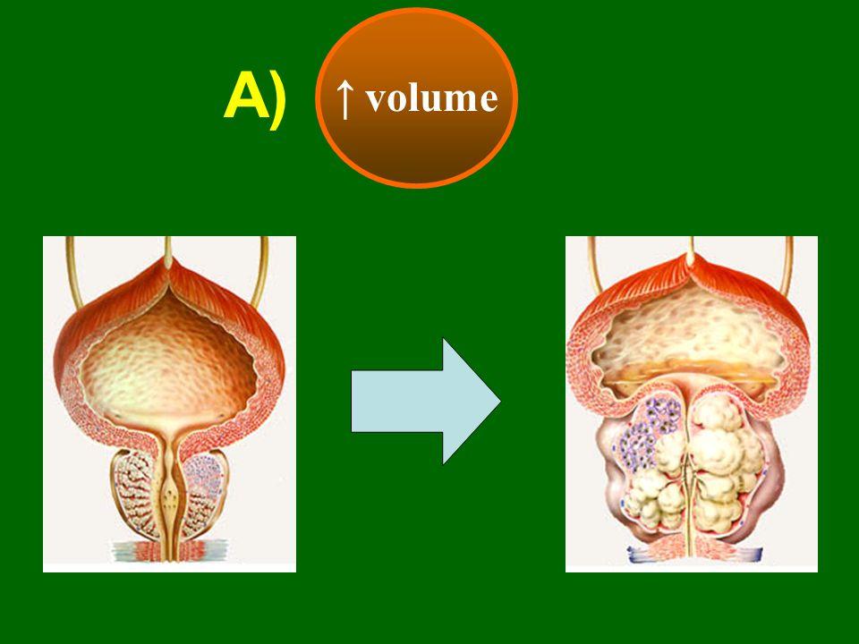 EFFICACIA CLINICA Effetto sul flusso dopo 1 anno di trattamento α-litici Qmax * p = <0.0001 vs placebo n = 304 pazienti 6 7 8 9 10 11 12 basale 9.1 3 mesi * 11.5 1 anno * 11.3
