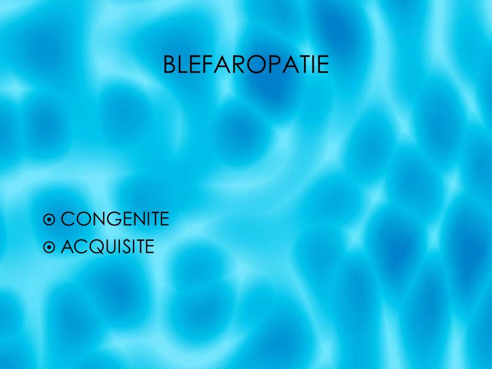 BLEFAROPATIE CONGENITE DELLA PALPEBRA IN TOTO Criptoftalmo Ablefaria Microblefaria Coloboma Ptosi Retrazione palpebrale