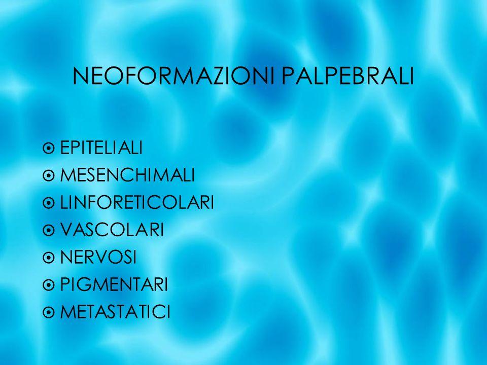 NEOFORMAZIONI PALPEBRALI EPITELIALI MESENCHIMALI LINFORETICOLARI VASCOLARI NERVOSI PIGMENTARI METASTATICI