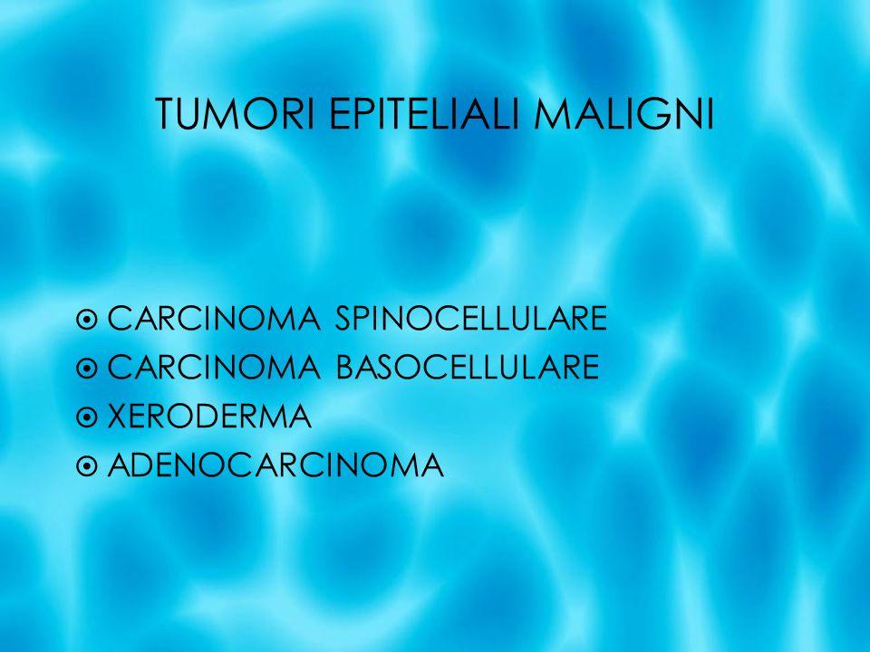 TUMORI EPITELIALI MALIGNI CARCINOMA SPINOCELLULARE CARCINOMA BASOCELLULARE XERODERMA ADENOCARCINOMA