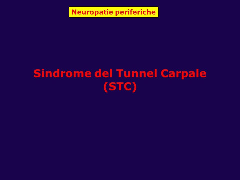 Neuropatie periferiche Sindrome del Tunnel Carpale (STC)