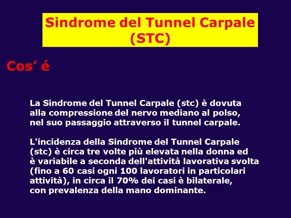 Sindrome del Tunnel Carpale (STC) Cos é La Sindrome del Tunnel Carpale (stc) è dovuta alla compressione del nervo mediano al polso, nel suo passaggio