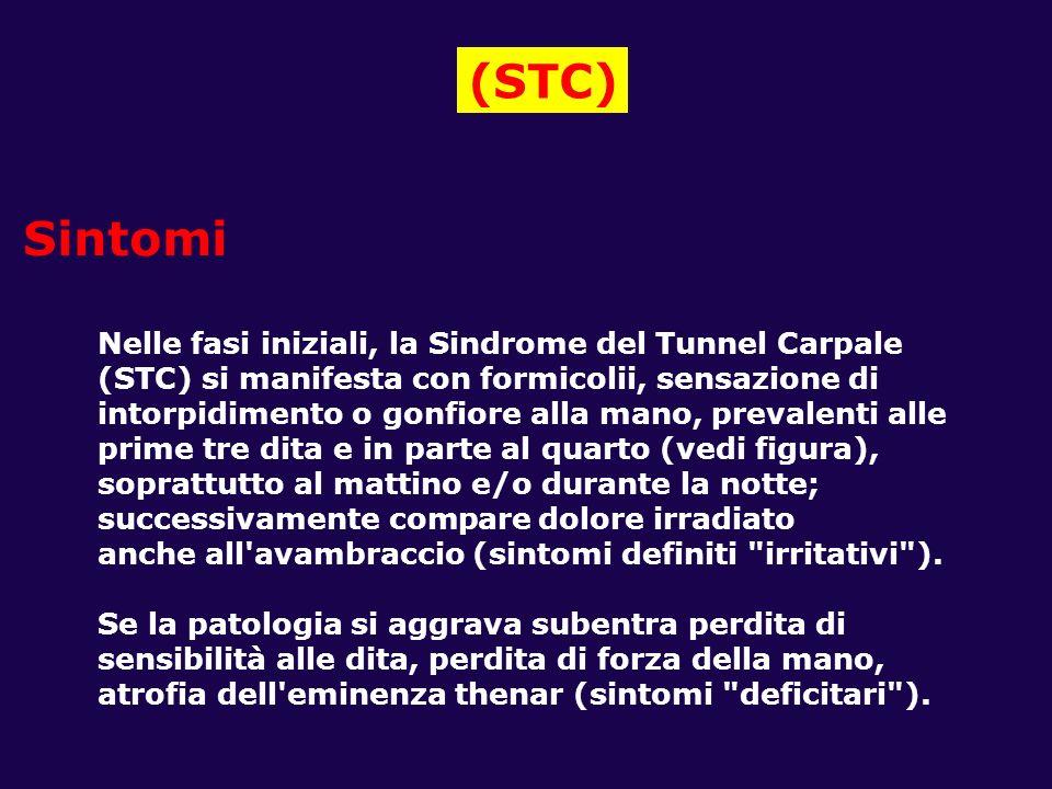 (STC) Sintomi Nelle fasi iniziali, la Sindrome del Tunnel Carpale (STC) si manifesta con formicolii, sensazione di intorpidimento o gonfiore alla mano