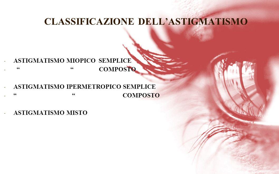 CLASSIFICAZIONE DELLASTIGMATISMO - ASTIGMATISMO MIOPICO SEMPLICE - COMPOSTO - ASTIGMATISMO IPERMETROPICO SEMPLICE - COMPOSTO - ASTIGMATISMO MISTO