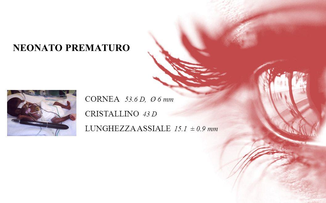 CORNEA 53.6 D, Ø 6 mm CRISTALLINO 43 D LUNGHEZZA ASSIALE 15.1 ± 0.9 mm NEONATO PREMATURO