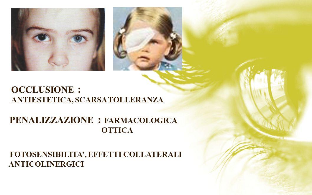 PENALIZZAZIONE : FARMACOLOGICA OTTICA FOTOSENSIBILITA, EFFETTI COLLATERALI ANTICOLINERGICI OCCLUSIONE : ANTIESTETICA, SCARSA TOLLERANZA