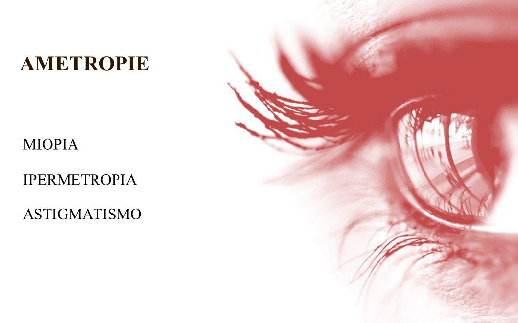 AMETROPIE MIOPIA IPERMETROPIA ASTIGMATISMO