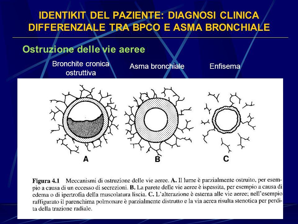 IDENTIKIT DEL PAZIENTE: DIAGNOSI CLINICA DIFFERENZIALE TRA BPCO E ASMA BRONCHIALE Ostruzione delle vie aeree Bronchite cronica ostruttiva Asma bronchi