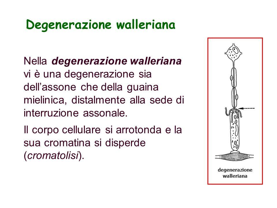 Degenerazione walleriana degenerazione walleriana Nella degenerazione walleriana vi è una degenerazione sia dellassone che della guaina mielinica, dis