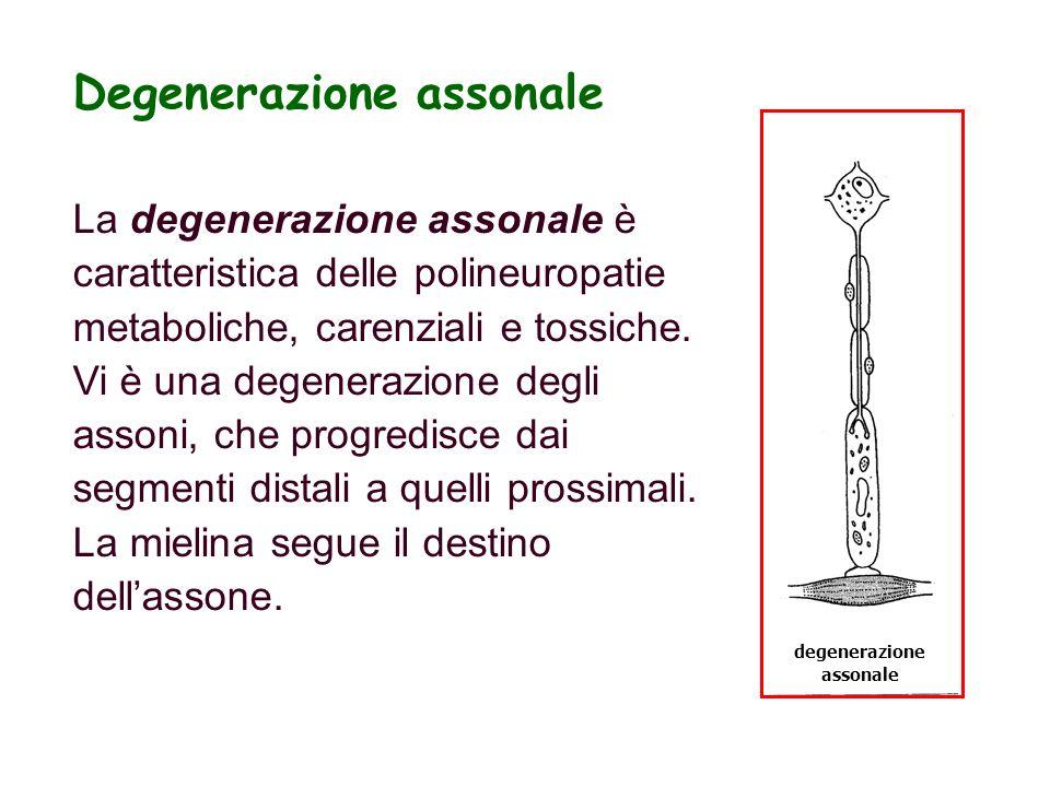 degenerazione assonale Degenerazione assonale La degenerazione assonale è caratteristica delle polineuropatie metaboliche, carenziali e tossiche. Vi è