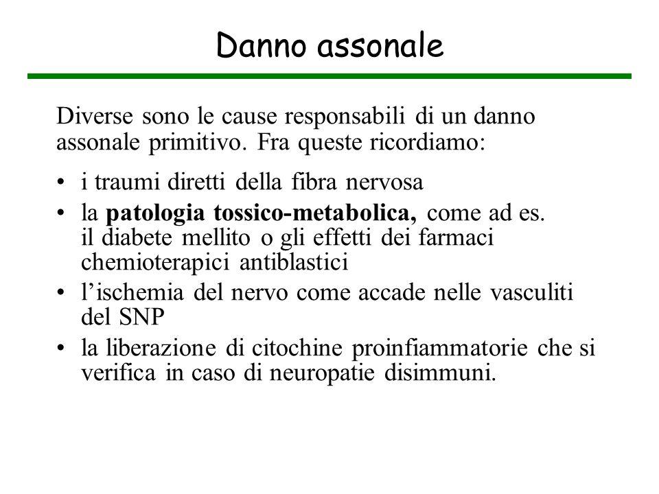 Danno assonale Diverse sono le cause responsabili di un danno assonale primitivo. Fra queste ricordiamo: i traumi diretti della fibra nervosa la patol
