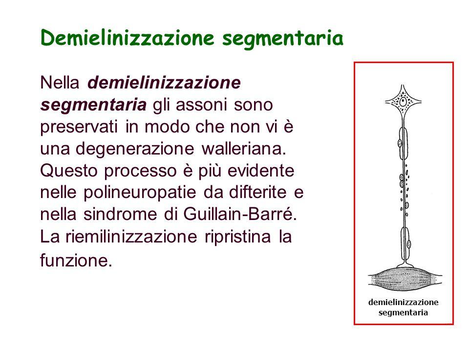 demielinizzazione segmentaria Demielinizzazione segmentaria Nella demielinizzazione segmentaria gli assoni sono preservati in modo che non vi è una de