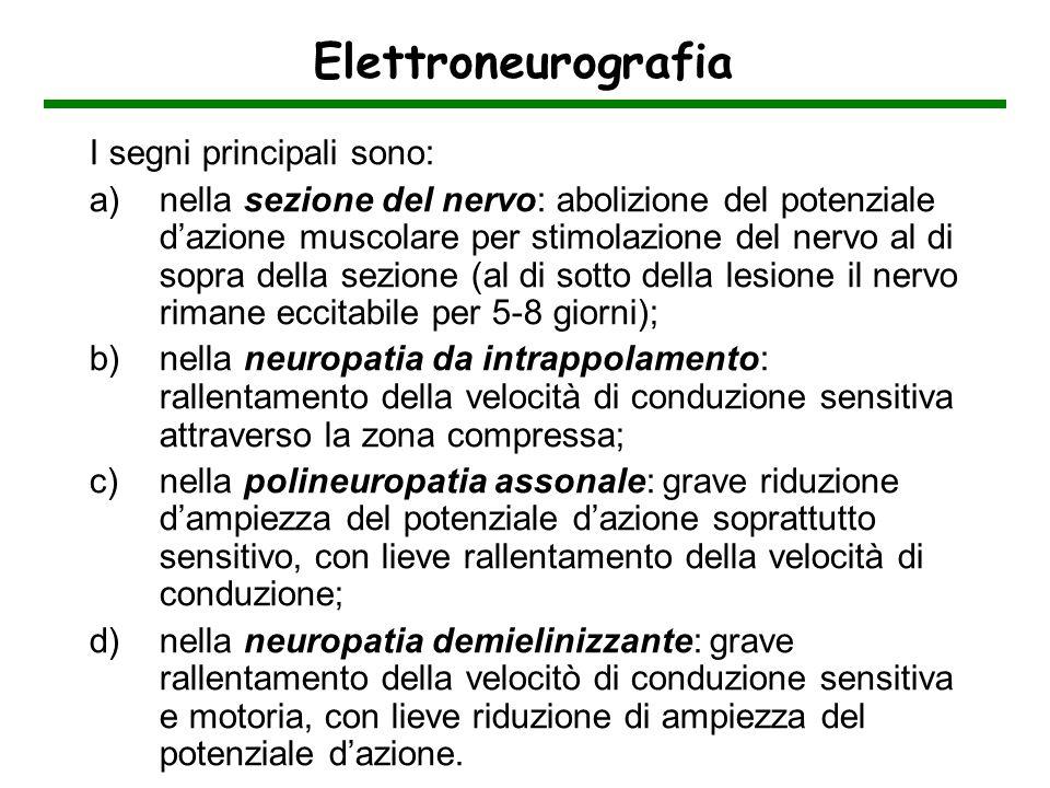 Elettroneurografia I segni principali sono: a)nella sezione del nervo: abolizione del potenziale dazione muscolare per stimolazione del nervo al di so