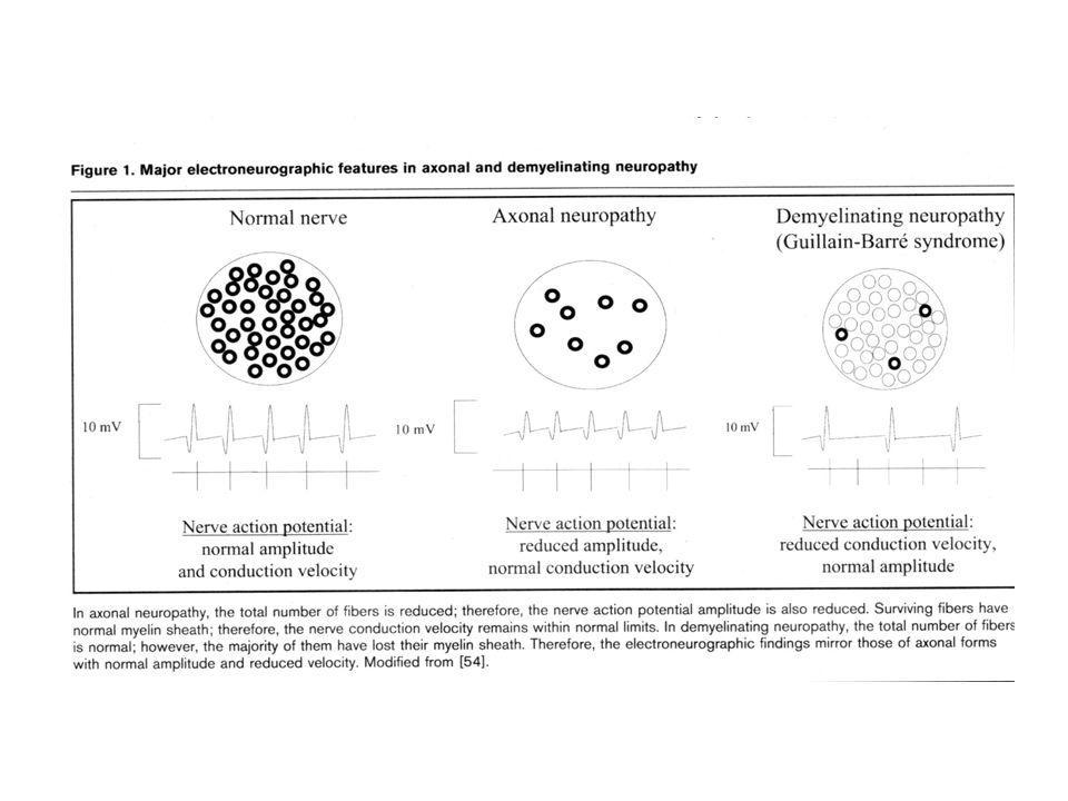 Neuropatie - Classificazione Poiché la presentazione della neuropatia è variabile e le cause sono numerose, un approccio clinico logico e sequenziale è indispensabile per la valutazione e il management.