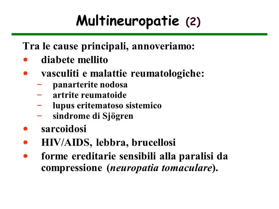 Multineuropatie (2) Tra le cause principali, annoveriamo: diabete mellito vasculiti e malattie reumatologiche: – panarterite nodosa – artrite reumatoi