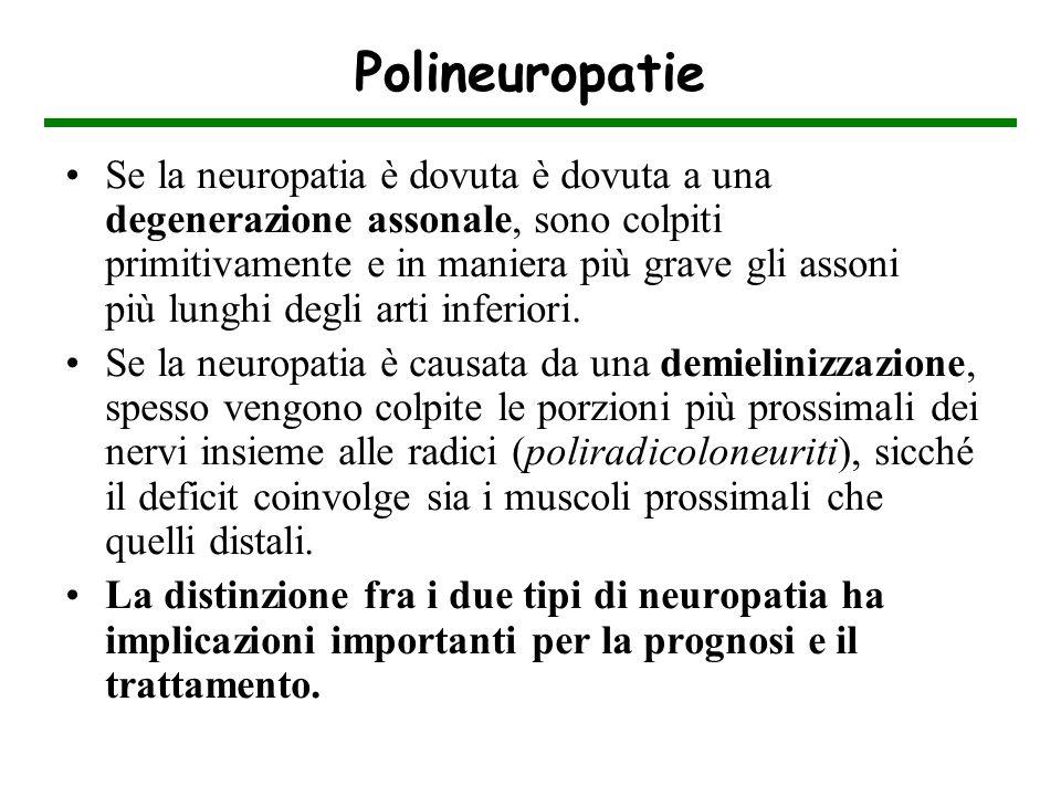 Polineuropatie Se la neuropatia è dovuta è dovuta a una degenerazione assonale, sono colpiti primitivamente e in maniera più grave gli assoni più lung