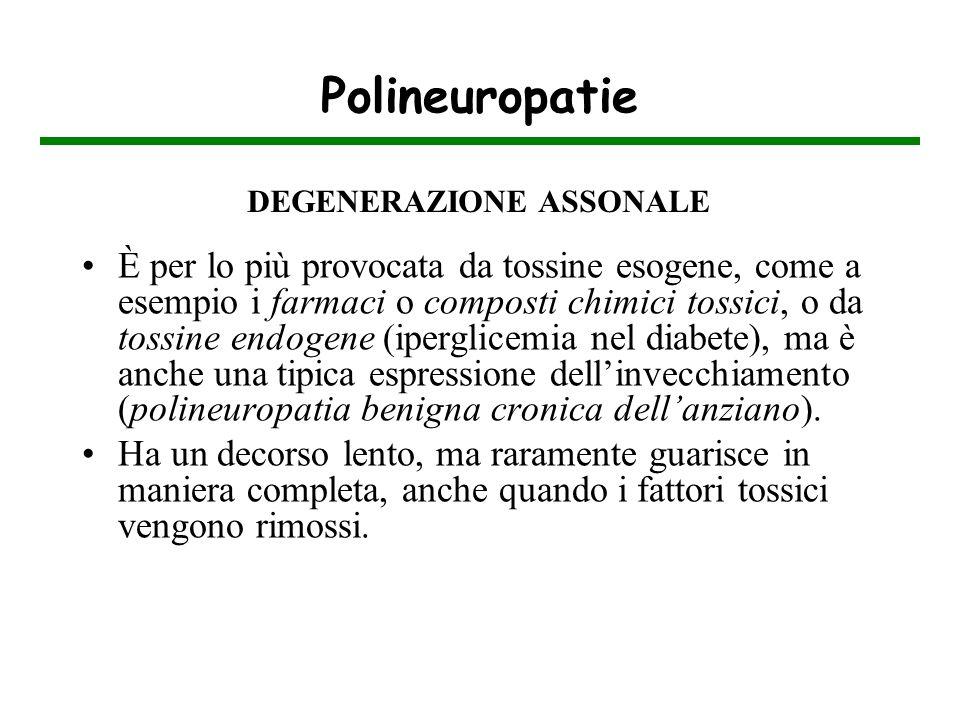 Polineuropatie È per lo più provocata da tossine esogene, come a esempio i farmaci o composti chimici tossici, o da tossine endogene (iperglicemia nel