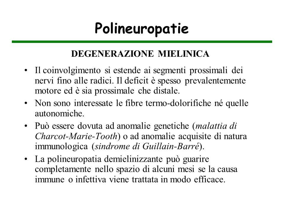 Polineuropatie Il coinvolgimento si estende ai segmenti prossimali dei nervi fino alle radici. Il deficit è spesso prevalentemente motore ed è sia pro