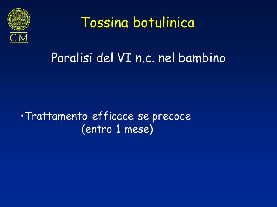 Tossina botulinica Trattamento efficace se precoce (entro 1 mese) Paralisi del VI n.c. nel bambino