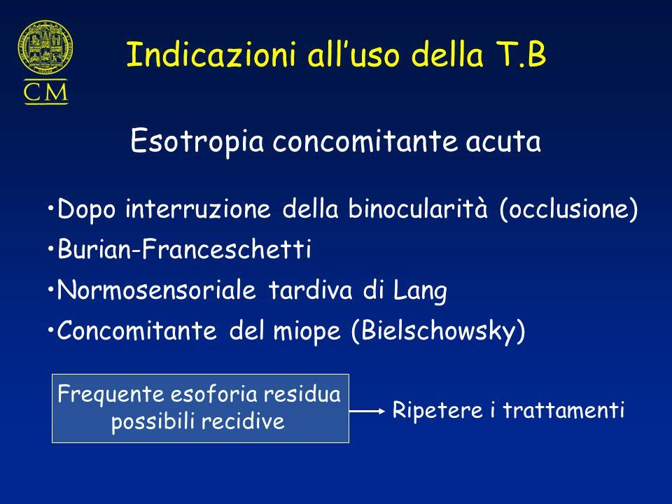 Indicazioni alluso della T.B Esotropia concomitante acuta Frequente esoforia residua possibili recidive Ripetere i trattamenti Dopo interruzione della
